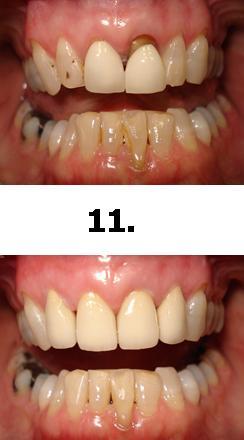 11normal