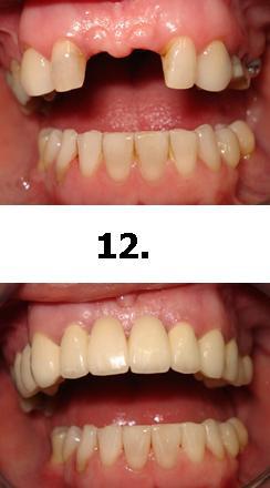 12normal
