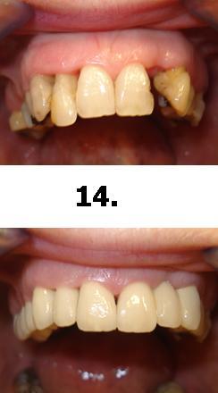 14normal_1