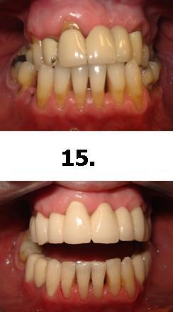 15normal_1